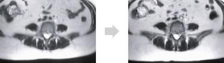 高周波による筋肉面積増加写真