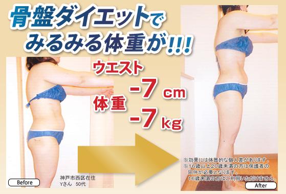 セルライト除去しながら脂肪燃焼しやすい体質を目指す骨盤矯正ダイエット結果ウエスト-17.5cm、体重-7kg神戸市西区在住 50代女性