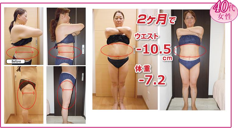セルライト除去しながら脂肪燃焼しやすい体質を目指す骨盤矯正ダイエット、メスを使わない脂肪吸引メディセル 40代女性ビフォアアフター 神戸市垂水区在住