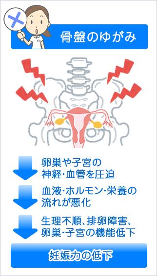 図:骨盤のゆがみ→卵巣や子宮の神経・血管を圧迫→血液・ホルモン・栄養の流れが悪化→生理不順、排卵障害、卵巣・子宮の機能低下→妊娠力の低下